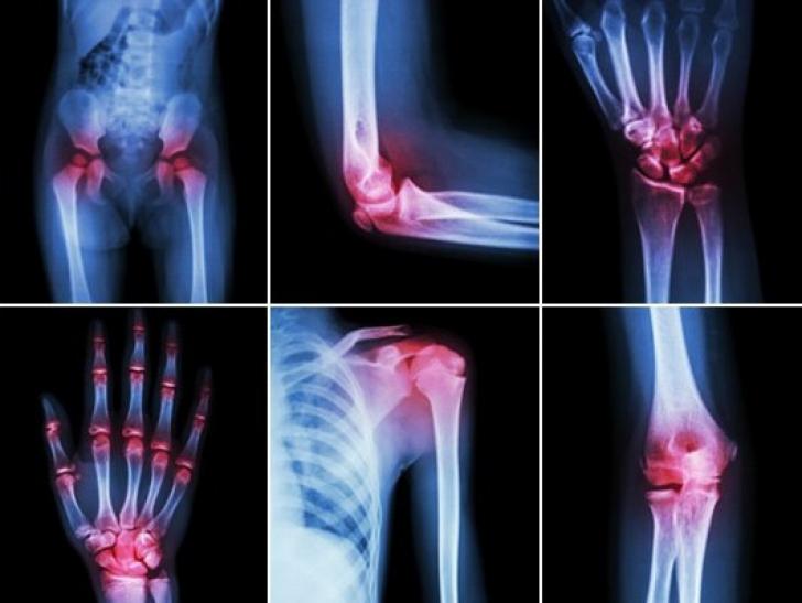 durere la genunchi în 8 ani
