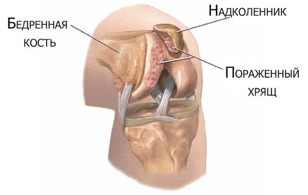 cum să preveniți artroza genunchiului fisură în tratamentul articulațiilor umărului