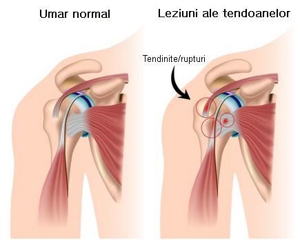 tratamentul rupturii capsulelor de umăr durere în articulațiile coloanei vertebrale