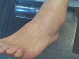DMS deteriorarea articulației gleznei