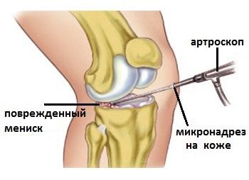 tratamentul artrozei cu artrita tratamentul deteriorat al articulațiilor