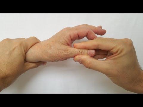 wilda tratament comun