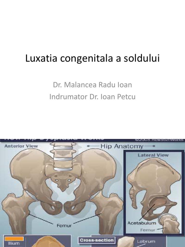 luxația congenitală a tratamentului articulațiilor șoldului brat amortit articulare cot