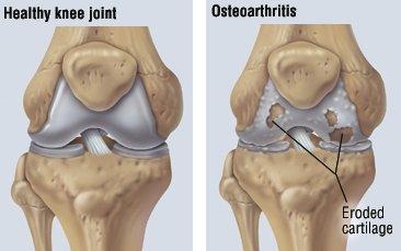 tratamentul osteoartritei genunchiului cu ozokerită pentru a reduce durerea în articulații și mușchi
