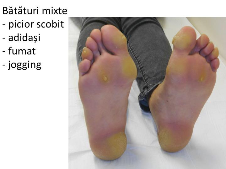 articulația degetului mare doare după călcâie