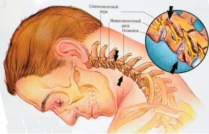 ce tratament pentru articulații poate fi aplicat