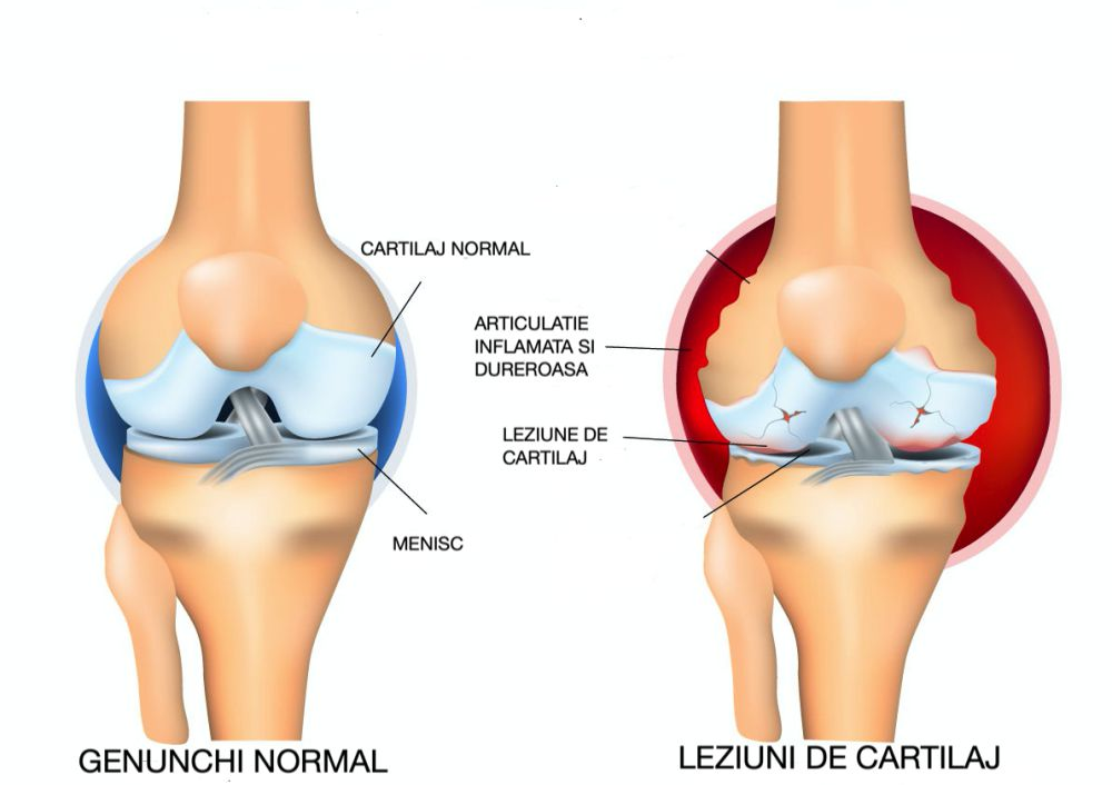 amorțeala mâinii tratamentul durerii articulare unguente în Germania pentru dureri articulare