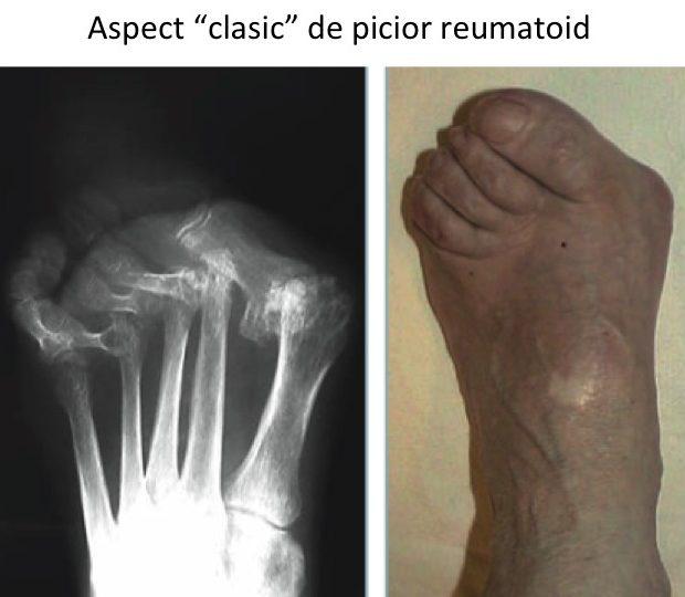 artrita articulațiilor piciorului articulațiilor decât pentru a calma durerea
