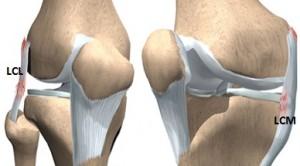 cum se tratează artroza 3 etape