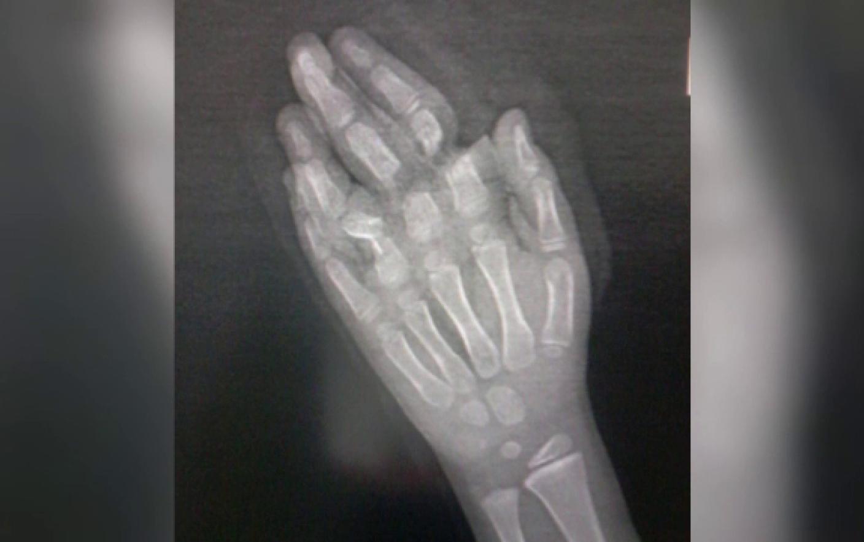 lovit pe articulația unui deget după o accidentare