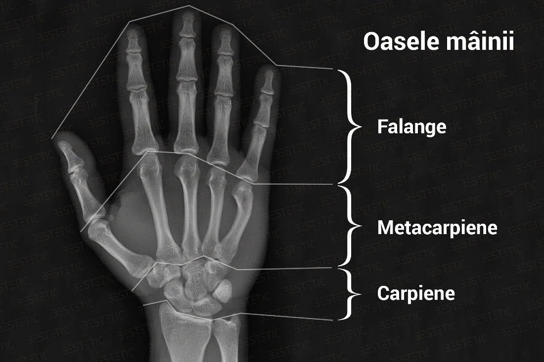 Movalis cu inflamația articulației cauze ale durerii la genunchi la bărbați