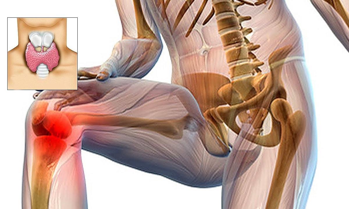 ce boala are dureri musculare si articulare