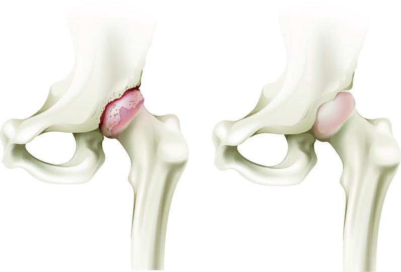 inflamația articulației degetului inelar