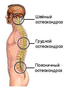 Sindromul arterei vertebrale și legătura acesteia cu osteocondroza cervicală