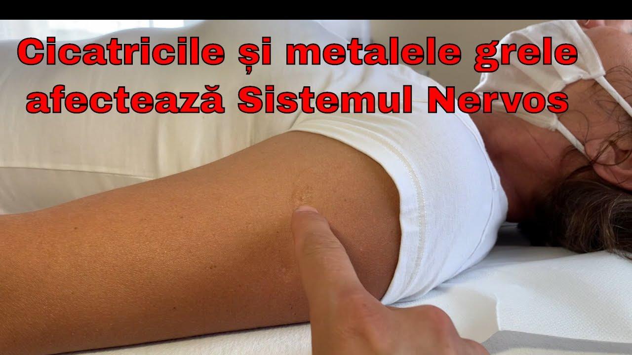 dacă toate articulațiile tratează crăpături dureri acute atunci când mergeți în articulațiile genunchiului