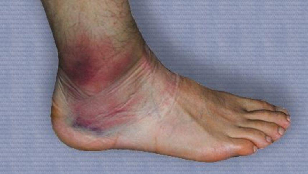 umflarea tratamentului articulației genunchiului
