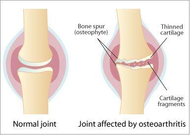 artroza articulației spire a piciorului articulațiile rănesc unguentul genunchilor