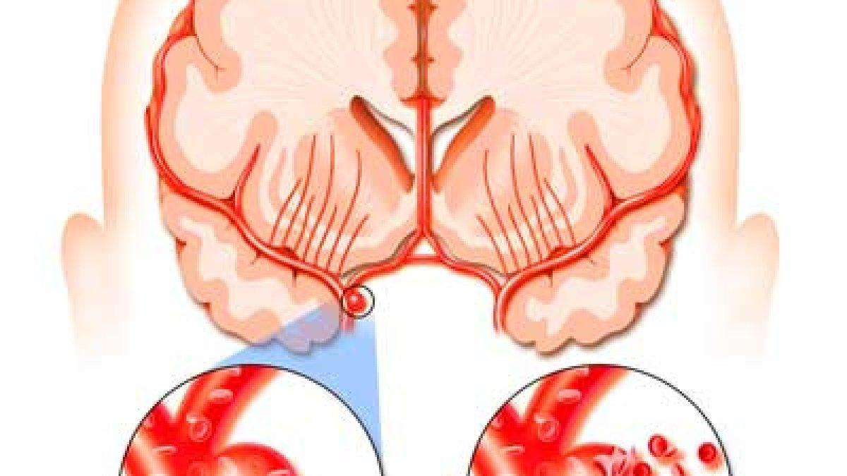meniscul afectează perioada de tratament a articulației genunchiului anghinare din dureri articulare
