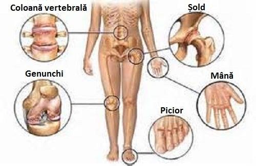 tratamentul la nivelul articulațiilor la rece