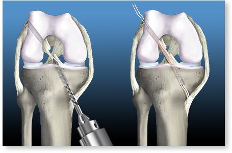 artroza tratamentului articulației gleznei de 1 grad articulații umflate și dureroase pe picior