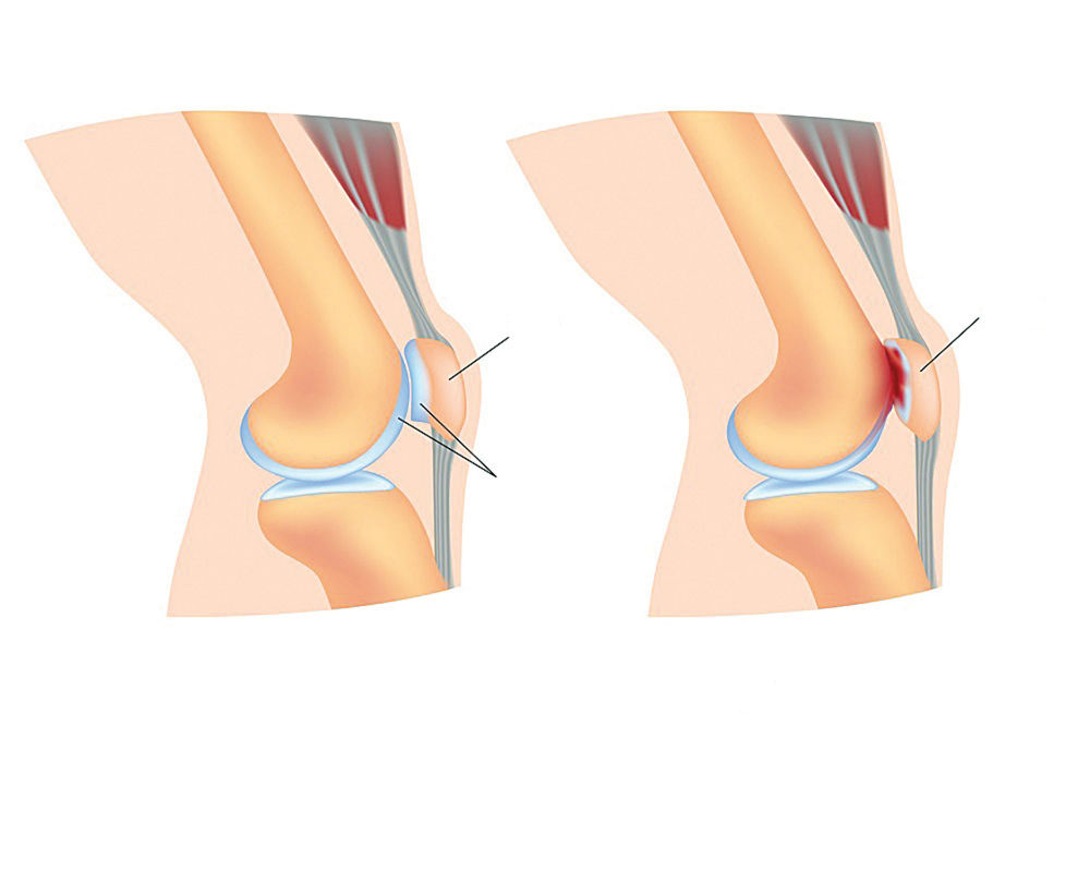Sindromul femuro-patelar