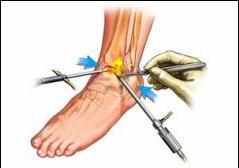 Tratament după fractura de gleznă - Tratamentul artrozei în Uzbekistan