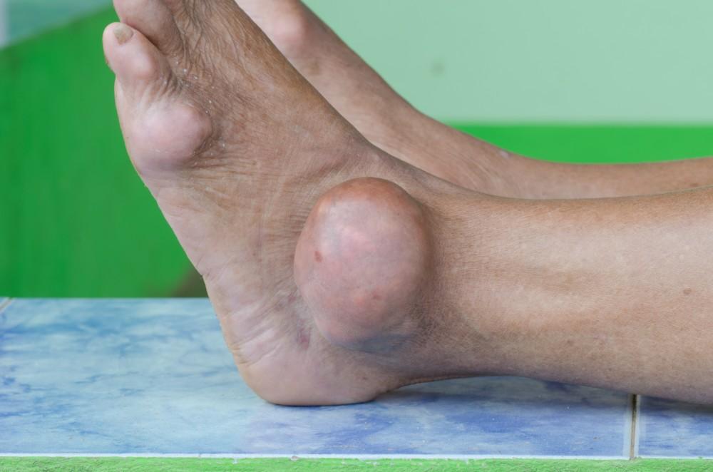 Durere în picior între degete și articulație - Durere deget mare de la picorul stang