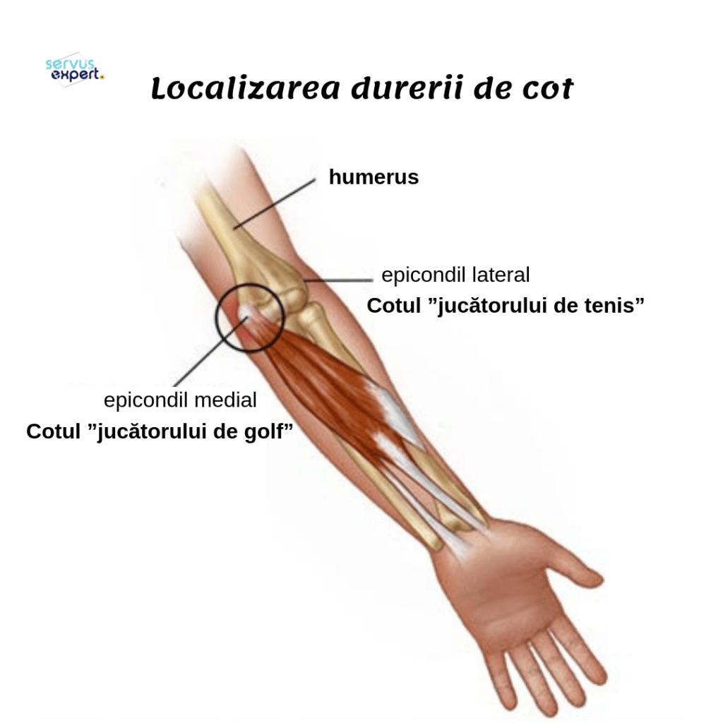 Artroza Secundara Glezna