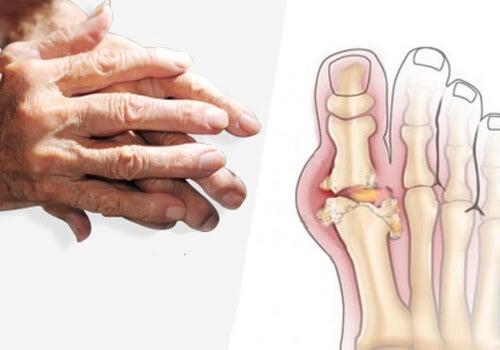 artrita brat tratament corect dacă articulațiile degetelor doare ce este