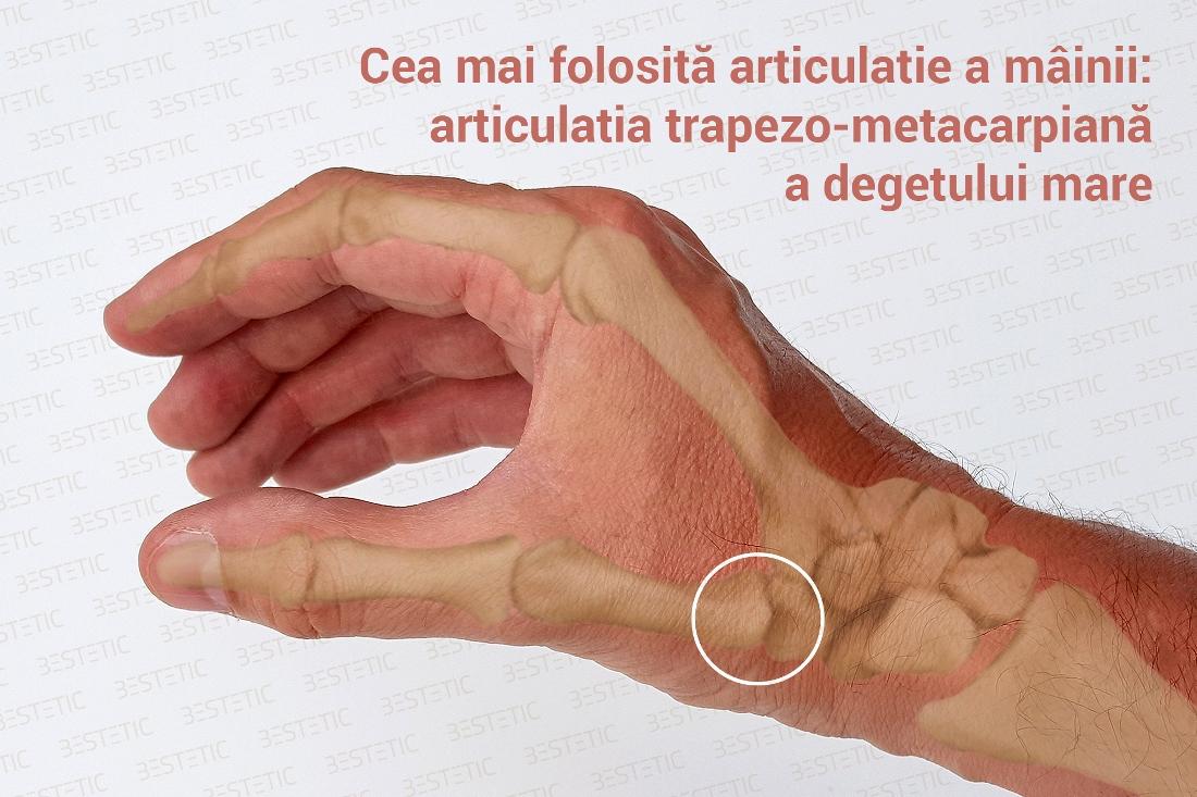 deteriorarea articulației mâinii