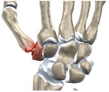 durere în prima articulație a degetului mare
