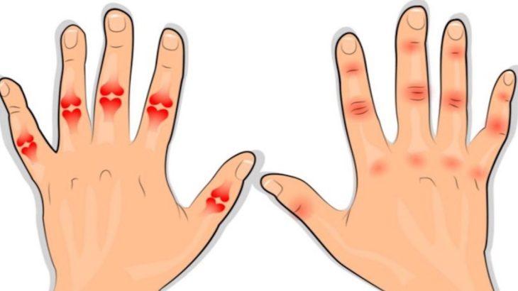 boli ale articulațiilor șoldului gelatină împotriva durerilor articulare