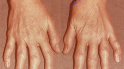scârțâie și rănește articulația degetului mare