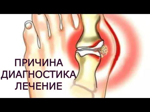 subluxarea articulației gleznei cum se tratează medicamente pentru artroza cervicală