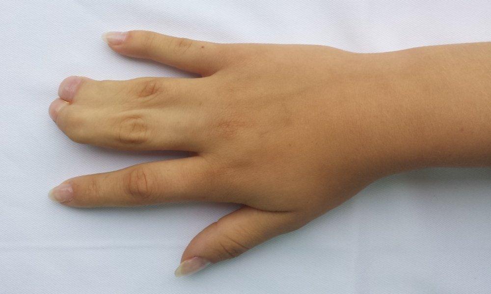 tratamentul artrozei urumqi