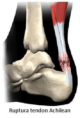 tratamentul rupturii tendonului gleznei