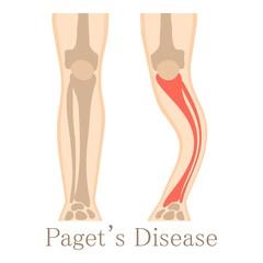 periartrita gleznei decât a trata din artroza articulației degetului de la picior