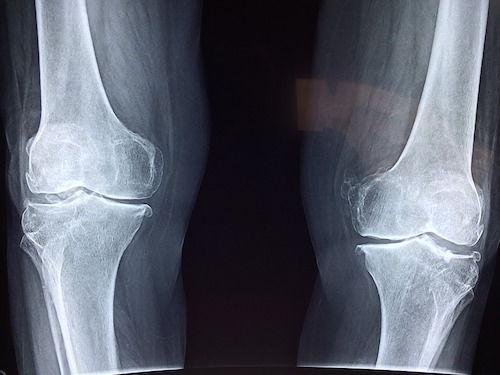 banda de alergare pentru artroza genunchiului durere în articulația umărului drept