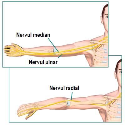 dureri articulare după fractura de șold