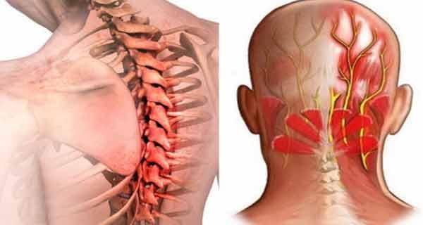lista de balsamuri pentru îmbinări ce este artroza articulațiilor mici ale mâinilor