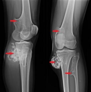 afecțiunile și tratamentul tendoanelor genunchiului