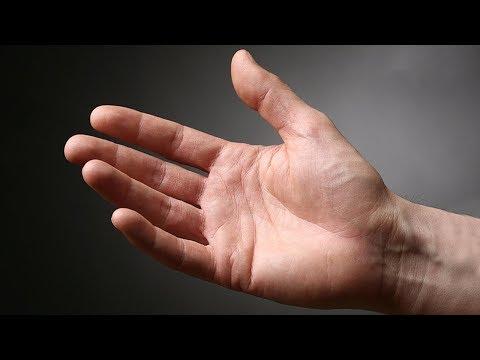 tapping artroza tratamentul unguent pentru inflamația articulațiilor cotului
