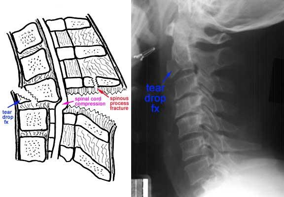 leziune articulară vertebrală care tratează articulațiile și ligamentele