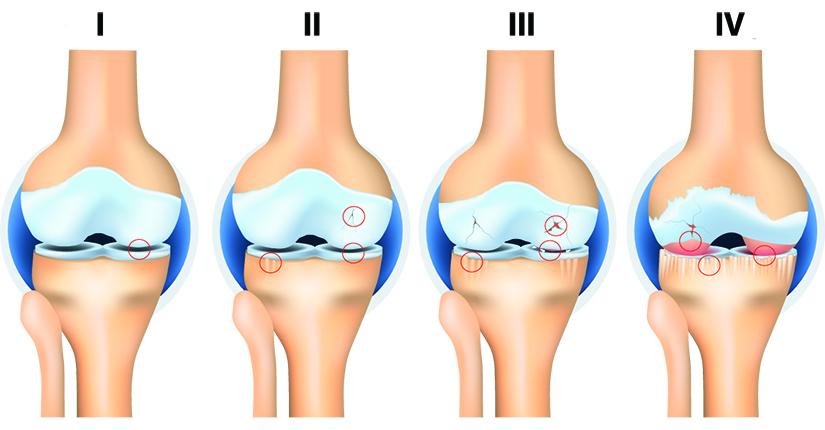 primele semne de artroză a tratamentului articulației genunchiului erizipelele articulației