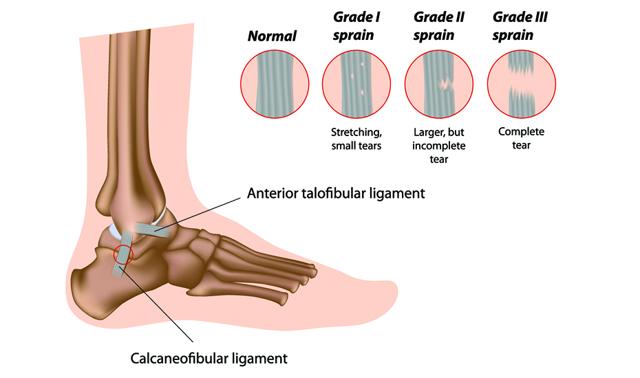Ruperea ligamentului gleznei tratament unguent, Leziunile gleznei   Ottobock RO