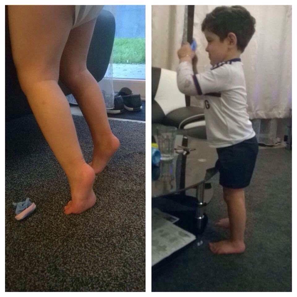 durerea de genunchi provoacă simptome condroitină fină și glucozamină
