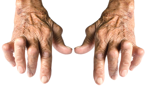 tratamentul artritei reumatoide a mâinii